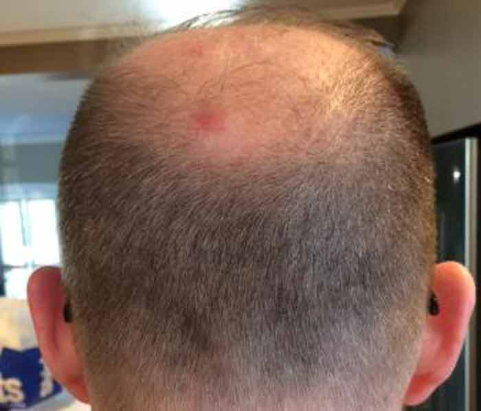 bed bug bite scalp picture
