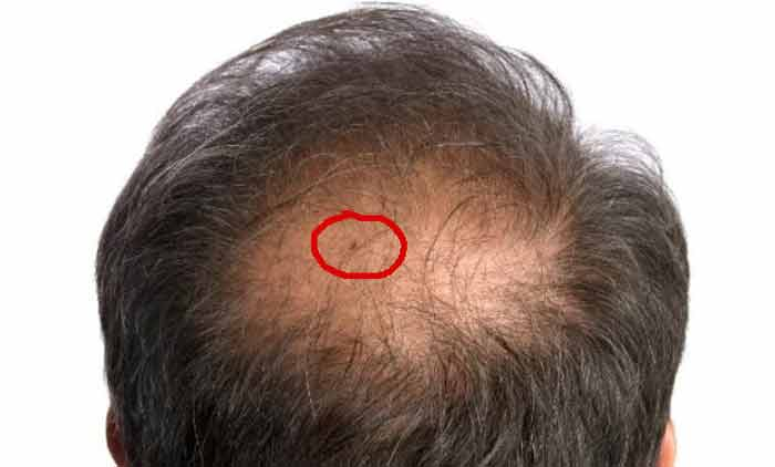 Dealing with bed bugs in hair-Symptoms & treatment