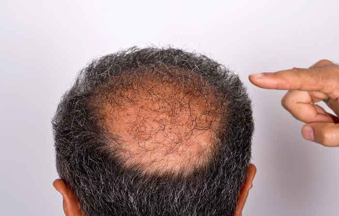 Do dust mites lead to hair loss