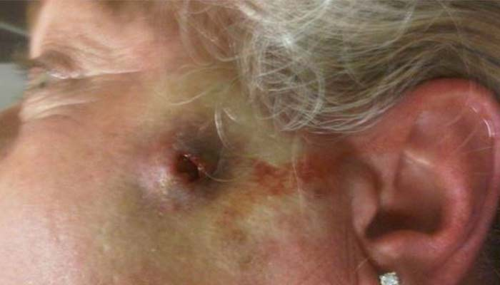 Wolf Spider Bite: Pictures, Symptoms, What It Looks Like ...