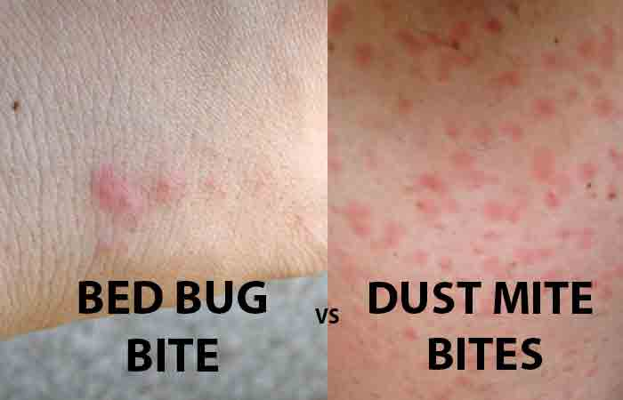 Dust Mite vs Bed Bug Bites | Pestbugs